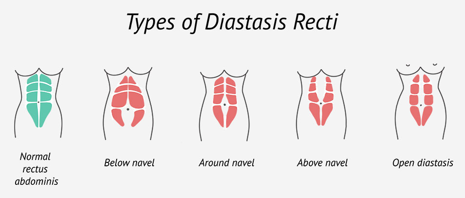 Types of Diastasis Recti